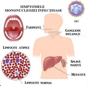 eliminarea amigdalelor pierde în greutate