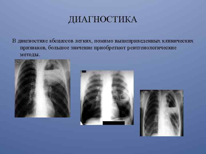 pneumonia pierde in greutate