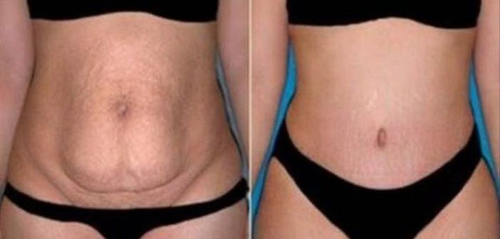 arderea grasimilor fata de pierderea in greutate