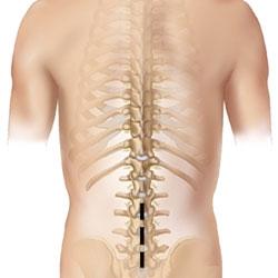 scăderea în greutate și stenoza coloanei lombare
