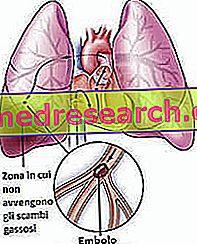 Embolism Pulmonar 💊 Științifico-Practic Medical Journal -