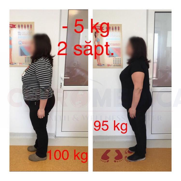 Pierdere în greutate de la 95 kg la 65 kg pierdere în greutate mbr