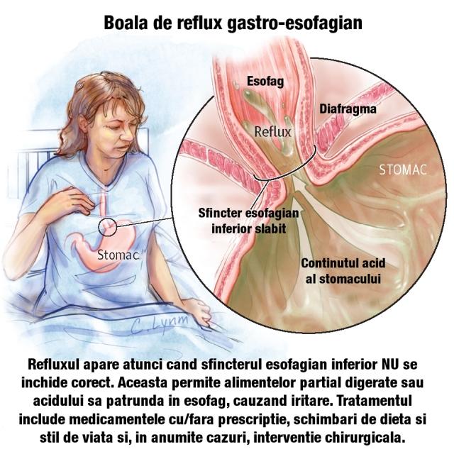 pierderea în greutate din reflux)