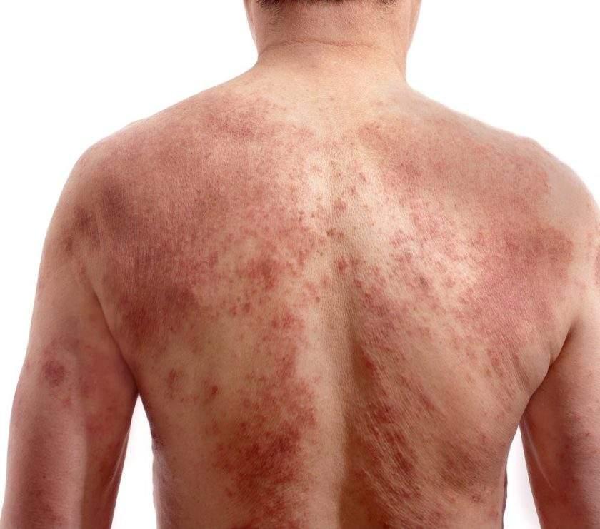 mărirea ganglionilor limfatici și pierderea în greutate)