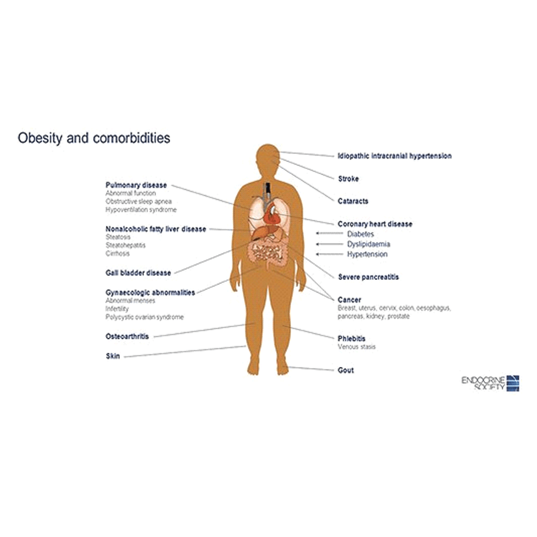pierderea în greutate ajută la obezitate morbidă)