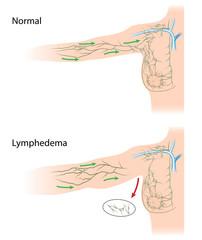 glandele limfatice umflate și pierderea în greutate)