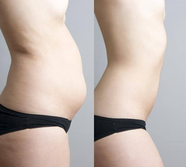 Pierderea în greutate durează 10 kilograme Pierdere în greutate edmonds suedez