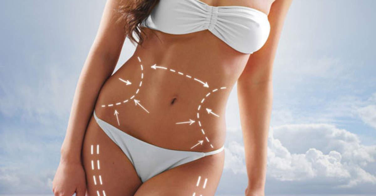 Ce Operatii Estetice Completeaza o Slabire Masiva - Soma Clinic