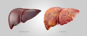 scăderea în greutate a carcinomului hepatocelular)