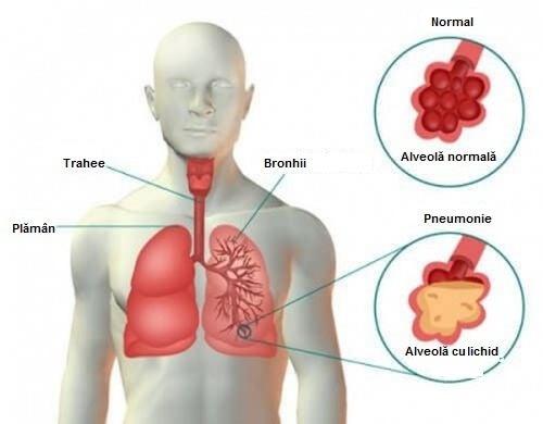 Ciroza hepatica | papaieftin.ro