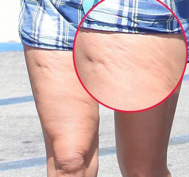 puteți pierde celulita cu pierderea în greutate hmc pierdere în greutate tustin