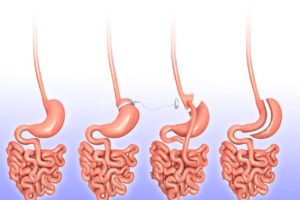 tipuri de intervenții chirurgicale pentru a pierde în greutate)