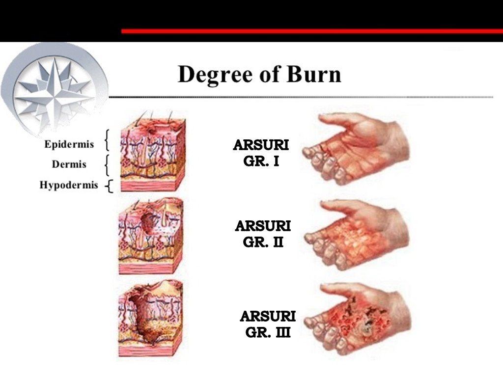 Arsuri la stomac – cauze, arsurile la stomac - de ce apar și cum scapi de ele