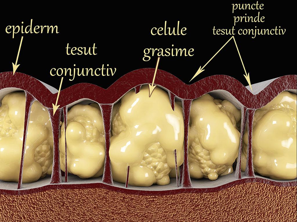 cum elimini celulele grase)