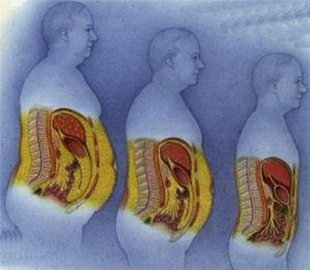 pierdem celulele grase