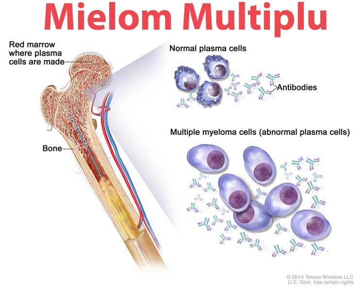 Mielom multiplu - Boala Kahler - Tot ce trebuie să ştii | Cancer