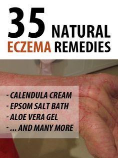 Eczema (dermatita atopica) | aaeecom, dieta ajuta eczema