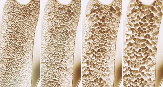 Osteodensitometria DEXA | Proceduri medicale