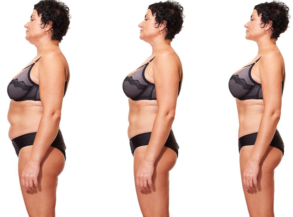 pierdem celulele grase pierderea în greutate a vărsăturilor recurente