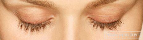 pierderea de grăsime a ochilor latisse