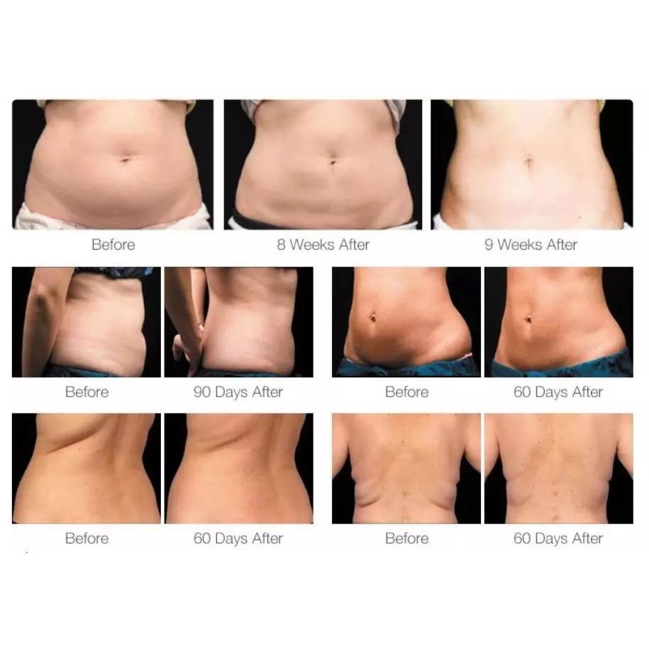 Pierderea de grăsime corporală vs pierderea în greutate