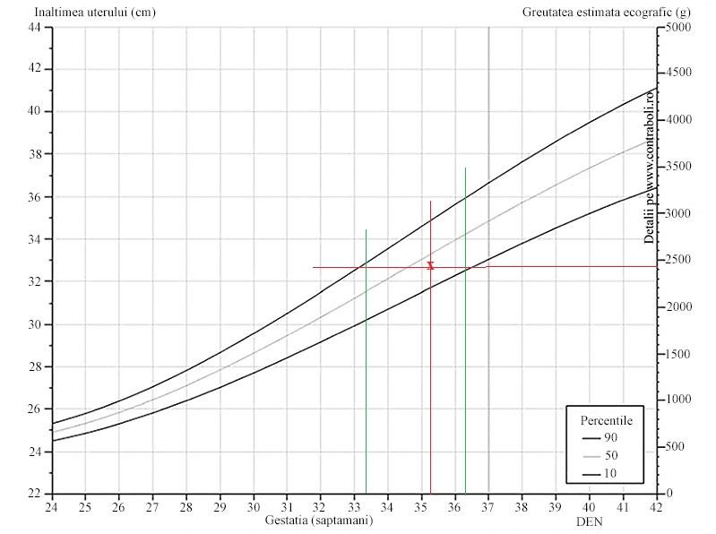 ritmul ideal de pierdere în greutate)