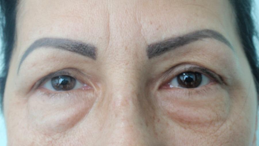 Blefaroplastia, operația care îți deschide bine ochii - Clinica Zetta