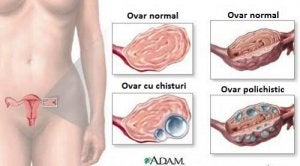Tot ce trebuie sa stii despre ovare polichistice, diagnostic si tratament