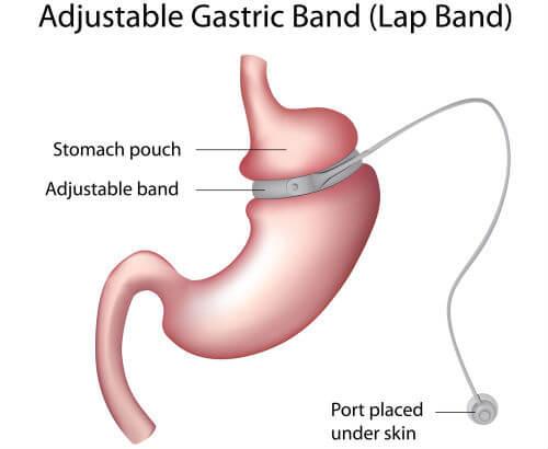 Tipuri de operatii - Interventii Obezitate
